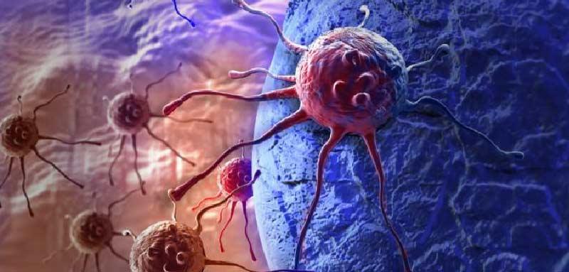 bicalutamide-prostate-cancer.