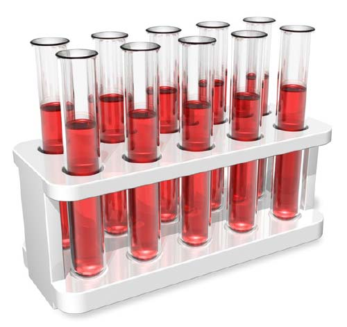PSA-cancer-lab-test.